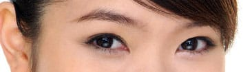 What is double eyelid surgery? 1